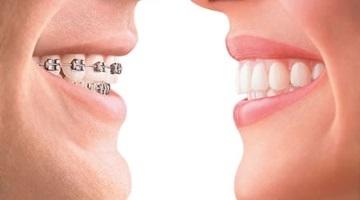 ortodon